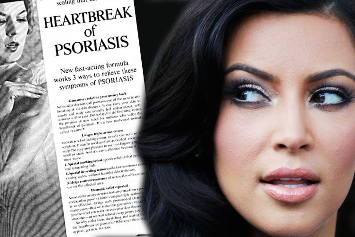Kim Kardashian suffers from the heartbreak of psoriasis.