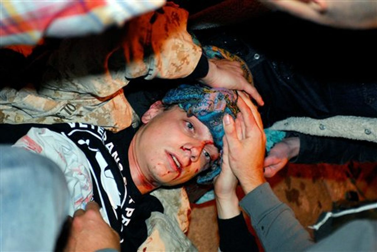 24-year-old Iraq War veteran Scott Olsen lays on the ground bleeding from a head wound after being struck by a by a projectile during an Occupy Wall Street protest in Oakland, Calif, last month.  (AP/Jay Finneburgh)