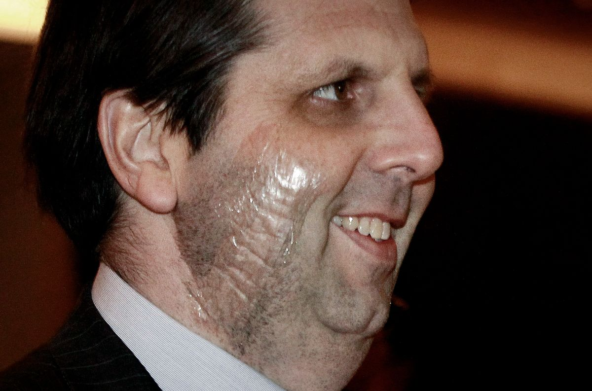 Ambassador to South Korea Mark Lippert smiles as he arrives to attend a dinner for the United States Forces Korea at Chosun Hotel in Seoul, South Korea, Friday, March 13, 2015. South Korean police said Friday that the anti-U.S. arrested last week for allegedly stabbing Lippert had intended to kill the envoy to highlight his protest against ongoing U.S.-South Korean military drills.(Ahn Young-joon) (Ahn Young-joon)