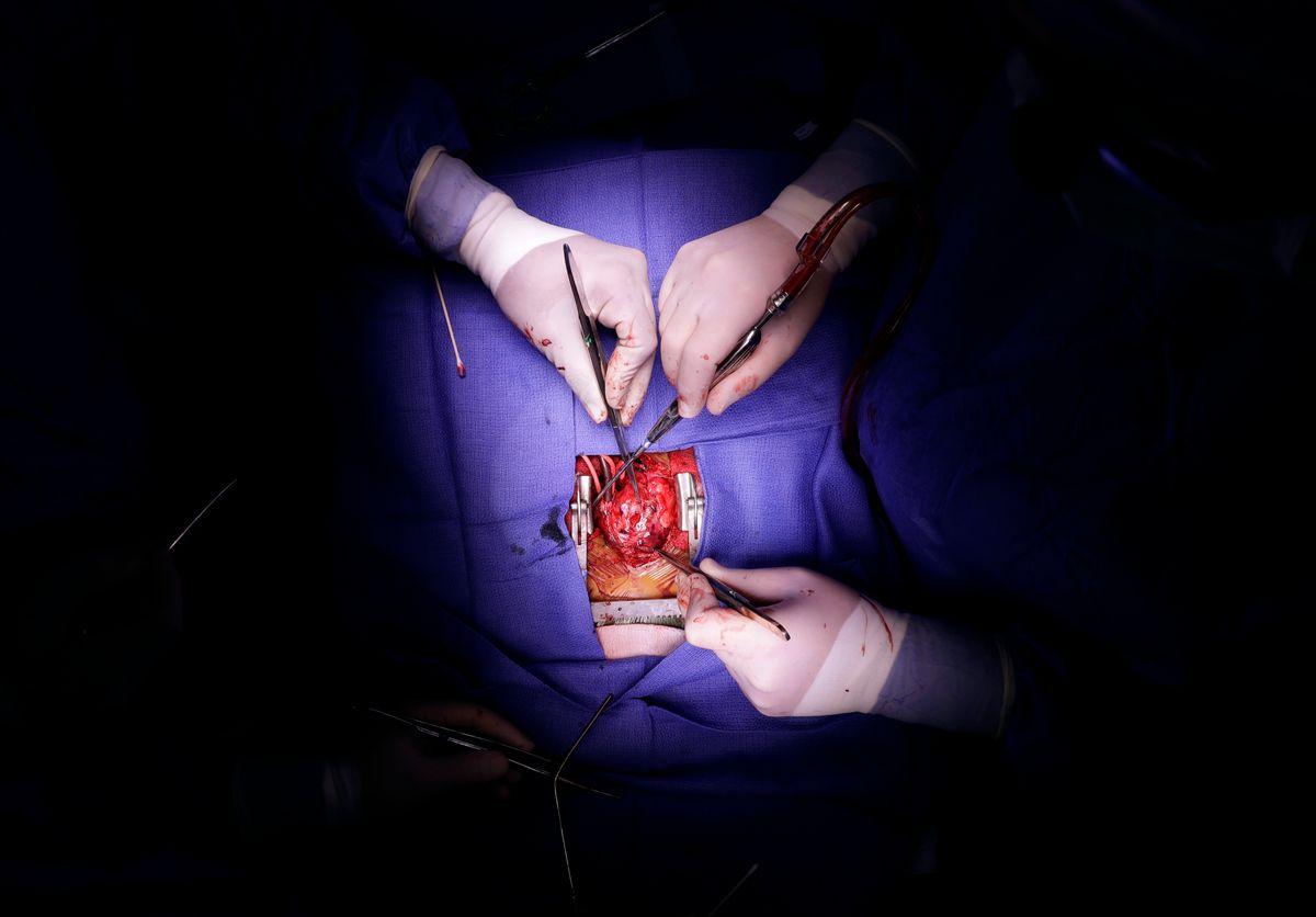 In this Nov. 28, 2016 photo, Dr. Sunjay Kaushal, left, performs open heart surgery on Josue Salinas Salgado at the University of Maryland Medical Center in Baltimore. (AP Photo/Patrick Semansky) (AP)