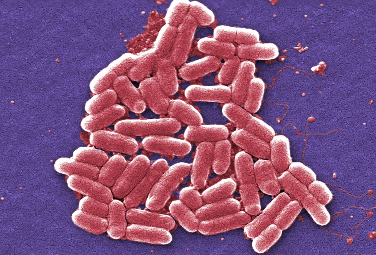This 2006 colorized scanning electron micrograph image made available by the Centers for Disease Control and Prevention shows the O157:H7 strain of the E. coli bacteria. New research suggests that a worrying number of people in China are infected with bacteria resistant to an antibiotic used as a last resort. Researchers examined more than 17,000 samples from patients with infections of common bacteria found in the gut, in two hospitals in China's Zhejiang and Guangdong provinces, over eight years. About 1 percent of those samples were resistant to colistin, often considered the last option in antibiotics. The study was published Friday, Jan. 27, 2017 in the journal, Lancet. (Janice Carr/CDC via AP) (AP)