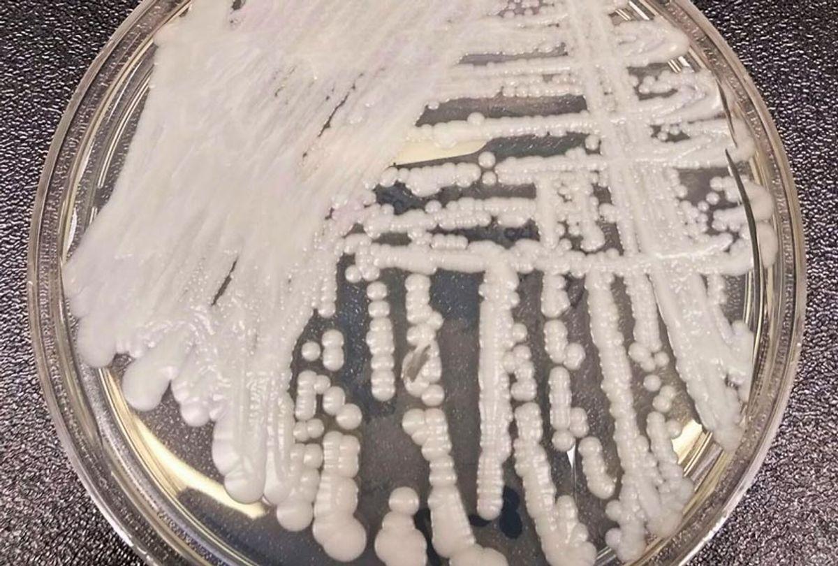 Candida auris in a petri dish at the CDC. (Wikimedia)