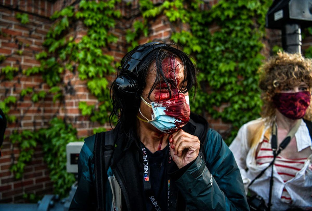 A journalist is seen bleeding after police started firing tear gas and rubber bullets near the fifth police precinct following a demonstration to call for justice for George Floyd on Saturday in Minneapolis. (Chandan Khanna/Getty Images)