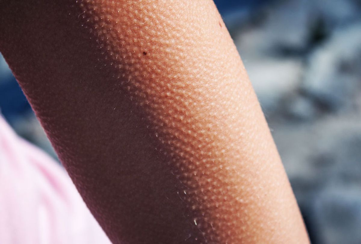 Goosebumps on a young woman's arm (Getty Images)