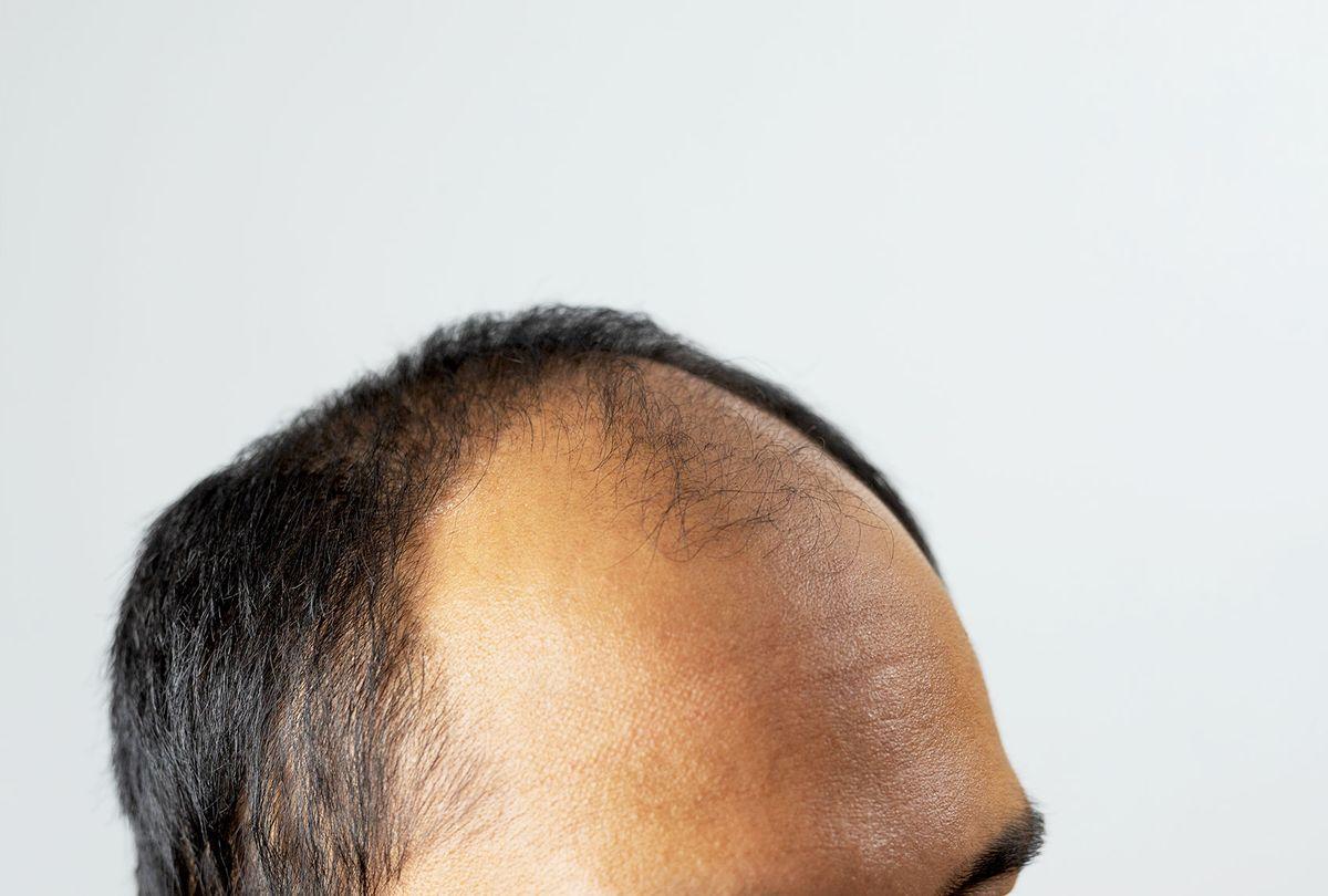 Close up man head of hair loss (Getty Images/Chanakon Laorob)