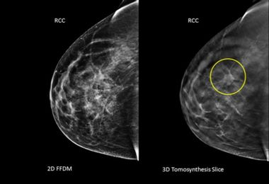 Should some women get mammograms at 30?