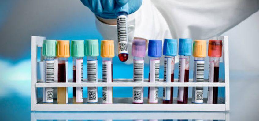 Hasil gambar untuk Drug Tests