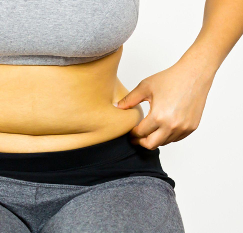 Is obesity a disease? | Salon.com