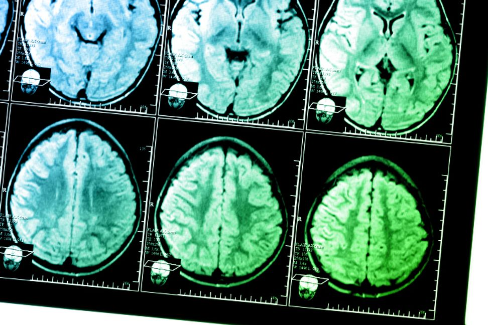 Bilingualism could delay onset of dementia