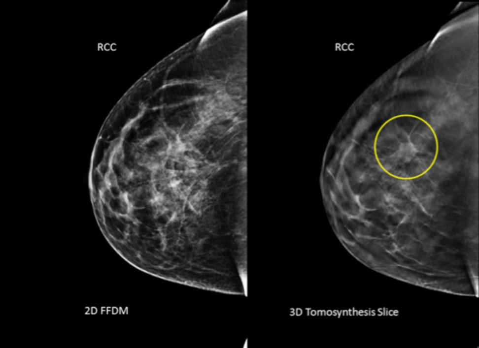 Should some women get mammograms at 30? | Salon.com